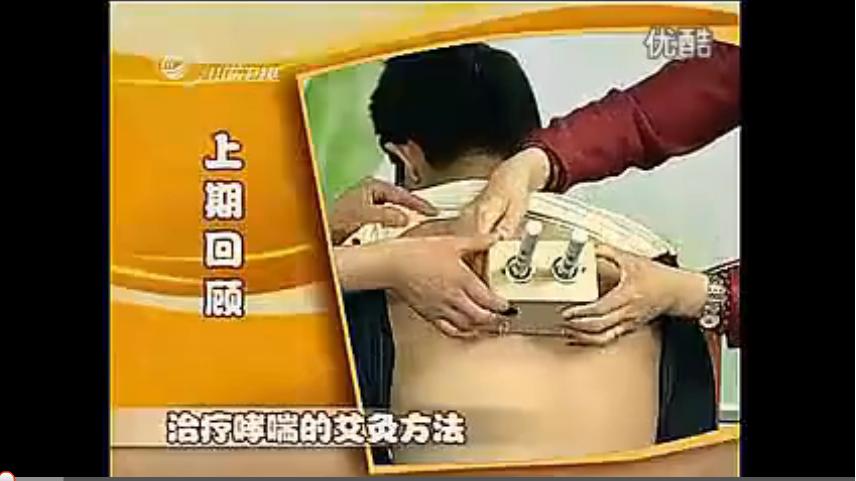 有艾更健康 11 艾灸治疗胃疼